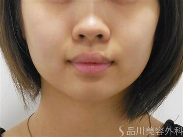 品川美容外科の鼻の整形の症例写真[ビフォー]