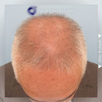 CZEN GINZA CLINIC (シゼン ギンザ クリニック)の薄毛治療の症例写真[ビフォー]