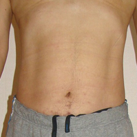 ハルスクリニックの痩身、メディカルダイエットの症例写真[アフター]