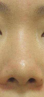 トキコクリニック 京都四条院の鼻の整形の症例写真[ビフォー]