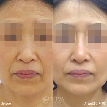 MIYAフェイスクリニックの鼻の整形の症例写真