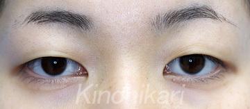 樹のひかり 形成外科・皮ふ科の目・二重の整形の症例写真[ビフォー]
