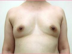 城本クリニックの豊胸手術(胸の整形)の症例写真[ビフォー]