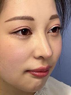 埋没法、目頭切開、鼻施術、ヒアルロン酸注入の症例写真[アフター]