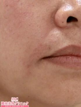 湘南美容クリニック大阪梅田院のその他の美容皮膚科治療の症例写真[アフター]