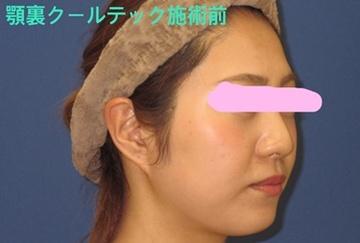 トキコクリニック 京都四条院の痩身、メディカルダイエットの症例写真[ビフォー]