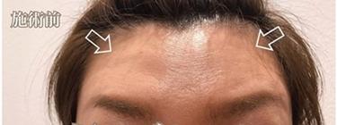 額のボトックスの症例写真[ビフォー]
