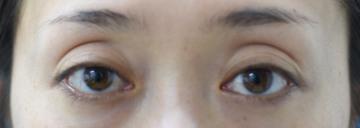 みずほクリニックの目元整形・クマ治療の症例写真[ビフォー]