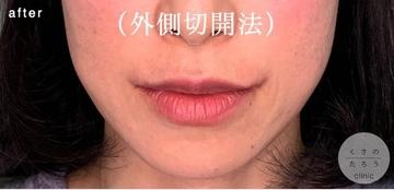 くさのたろうクリニックの口元・唇の整形の症例写真[アフター]