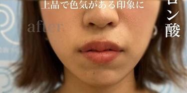 唇ヒアルロン酸の症例写真[アフター]