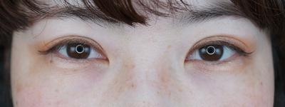 グランドループ法(二重埋没法)術後1ケ月 女性 30代の症例写真[アフター]