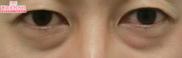 湘南美容クリニック浜松院の目元の整形、くま治療の症例写真[ビフォー]
