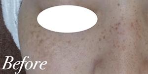 表参道スキンクリニックのシミ治療(シミ取り)・肝斑・毛穴治療の症例写真[ビフォー]