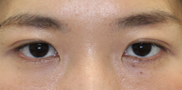 大塚美容形成外科の症例写真[アフター]