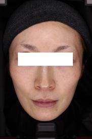 神戸アカデミアクリニックのシミ治療(シミ取り)・肝斑・毛穴治療の症例写真[アフター]