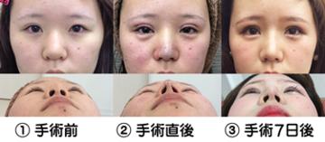 東京ゼロクリニック銀座の鼻の整形の症例写真