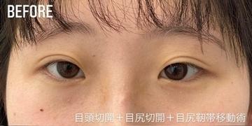 GLANZ CLINIC (グランツクリニック)の目・二重整形の症例写真[ビフォー]