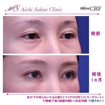 あいち栄クリニックの顔の整形(輪郭・顎の整形)の症例写真