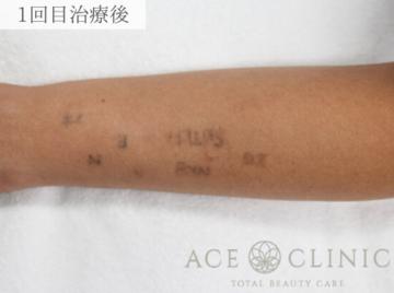 エースクリニックのタトゥー除去(刺青・入れ墨を消す治療)の症例写真[アフター]