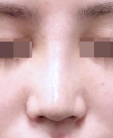 湘南美容クリニック 上野院の鼻の整形の症例写真[アフター]