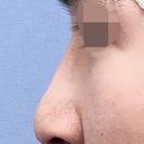 鼻尖形成・鼻中隔延長・人工真皮移植/術後1週間[アフター]