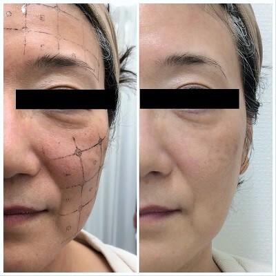 新型「サーマクールFLX」で、引き締め小顔への症例写真