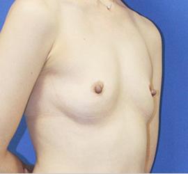 オザキクリニックLUXE新宿の豊胸手術(胸の整形)の症例写真[ビフォー]