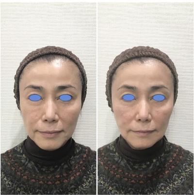 ヒアルロン酸オールカスタマイズ治療の症例写真