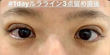 ルラ美容クリニック 高田馬場院の目・二重の整形の症例写真[アフター]