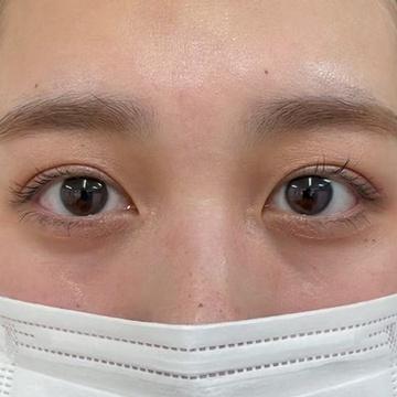SELECT CLINIC(セレクトクリニック)の目・二重整形の症例写真