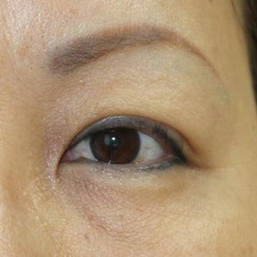 タウン形成外科クリニックの目元の整形、くま治療の症例写真[アフター]