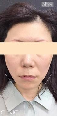 東京ゼロクリニック銀座の症例写真[アフター]