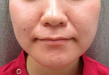 御所南はなこクリニックの顔の整形(輪郭・顎の整形)の症例写真[ビフォー]