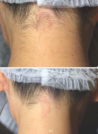 丸の内医院の医療レーザー脱毛の症例写真
