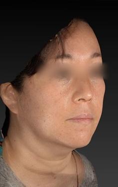 CZEN GINZA CLINIC (シゼン ギンザ クリニック)の症例写真[アフター]