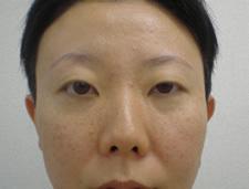 眼瞼下垂 術前&術後4か月の症例写真[ビフォー]