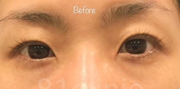 81clinicの目・二重の整形の症例写真[ビフォー]