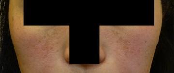 さやか美容クリニック・町田のシミ治療(シミ取り)・肝斑・毛穴治療の症例写真[ビフォー]