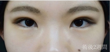 ジョウクリニックの目・二重整形の症例写真[アフター]