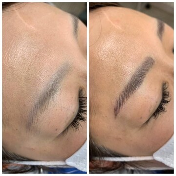 札幌クララ美容皮膚科のアートメイクの症例写真