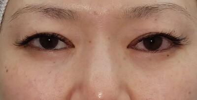 MD式眉下切開法/術後6日 抜糸直後の症例写真[ビフォー]