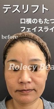 ロレシー美容クリニック 心斎橋駅前院の顔のしわ・たるみの整形の症例写真[ビフォー]