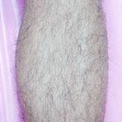 イデア美容皮膚科クリニックの医療レーザー脱毛の症例写真[ビフォー]