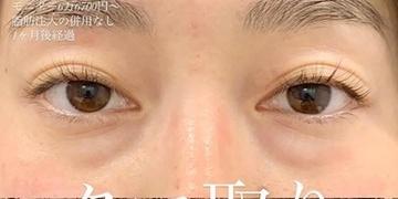 ルラ美容クリニックの目元整形・クマ治療の症例写真[ビフォー]