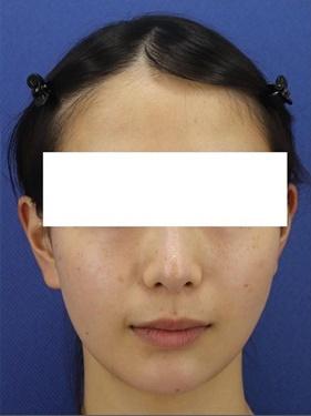 銀座長瀬クリニックの顔のしわ・たるみの整形(リフトアップ手術)の症例写真[アフター]