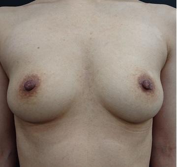 銀座3丁目・BANNAI美容クリニックの豊胸手術(胸の整形)の症例写真[ビフォー]
