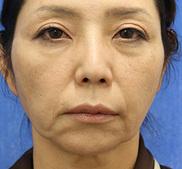 オザキクリニックLUXE新宿の顔のしわ・たるみの整形(リフトアップ手術)の症例写真[ビフォー]