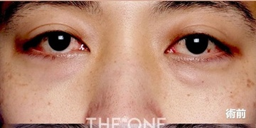 THE ONE.の目元整形・クマ治療の症例写真[ビフォー]