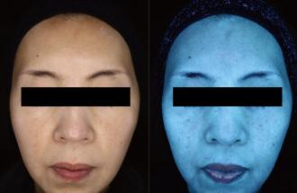 シミ治療(ピコフラクショナルレーザー)の症例写真[アフター]