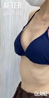 GLANZ CLINIC (グランツクリニック)の豊胸・胸の整形の症例写真[アフター]